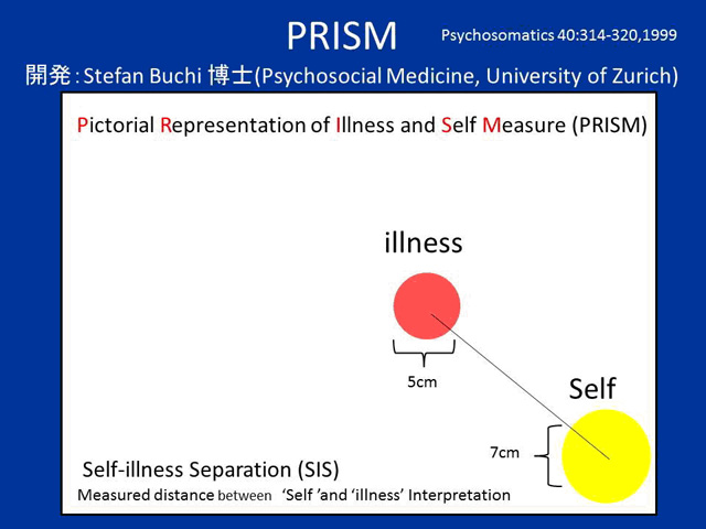 PRISM(Pictorial Representaion of Illness and Self Measure) イメージ